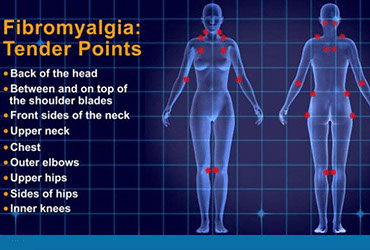 El Paso Pain Center Fibromyalgia Pic